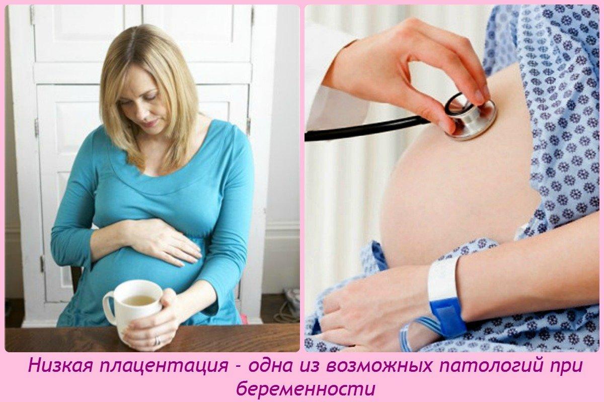 Низкая плацента во время беременности как опасен оргазм