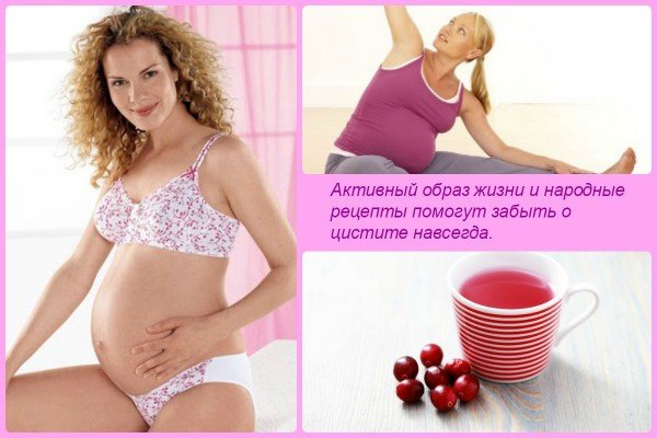 Живот болит как при цистите у беременных