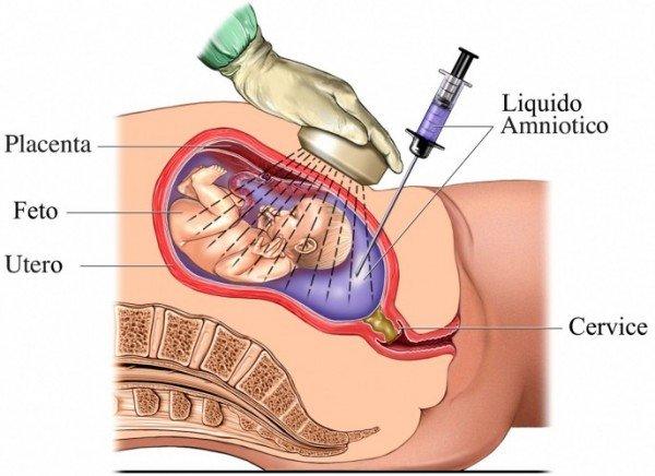 Какие анализы сдают беременные: биопсия хориона