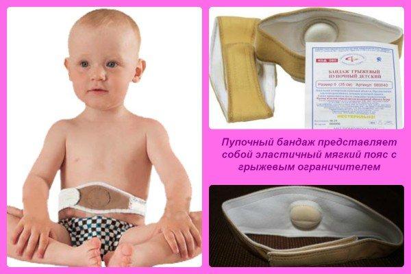 Пупочная грыжа у новорождённых: бандаж