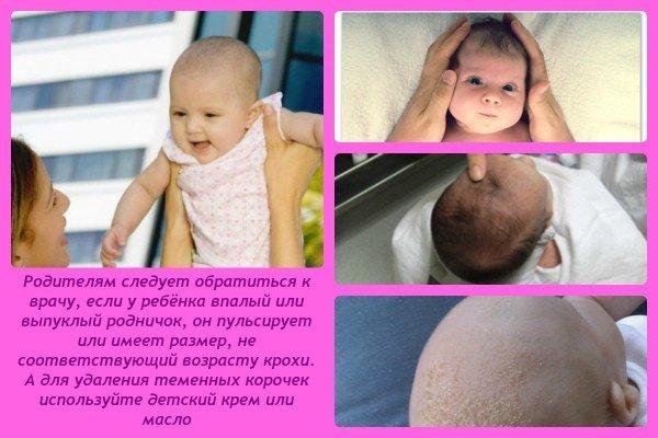 Темечко у младенцев: на что обратить внимание