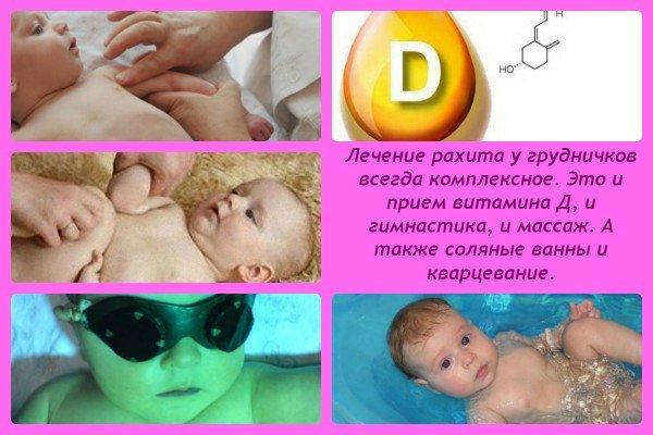 Рахит у новорождённых:  лечение