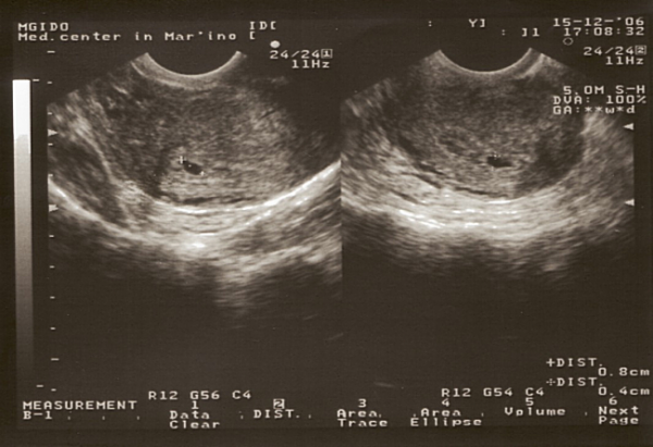 УЗИ плода на ранних сроках беременности