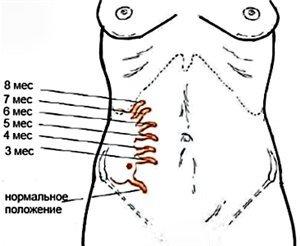 Локация аппендикса в разные периоды беременности