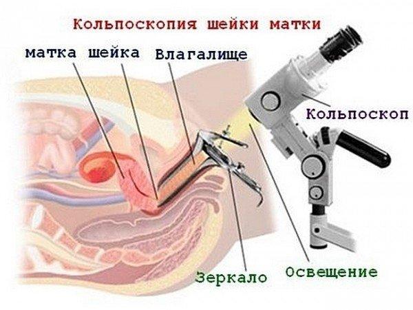 Кольпоскопия: суть диагностического исследования