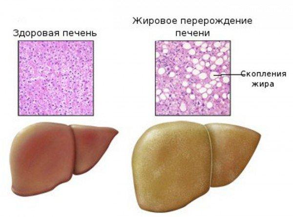 Здоровая печень и печень с жировыми отложениями