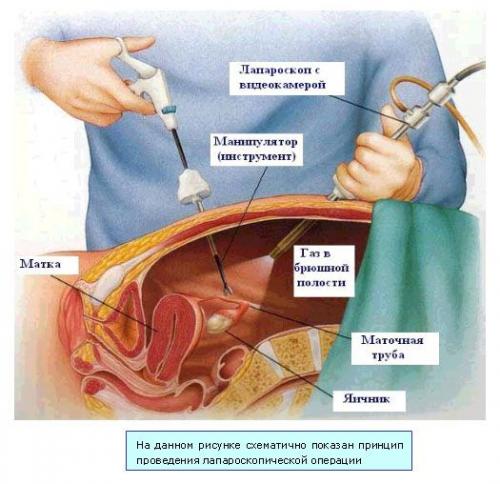 kista-meshaet-spermatogenezu-forum
