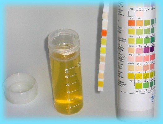 Кетоновые тела в моче во время беременности — причины появления и методы лечения