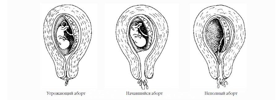 Как сделать выкидыш на ранних стадиях беременности