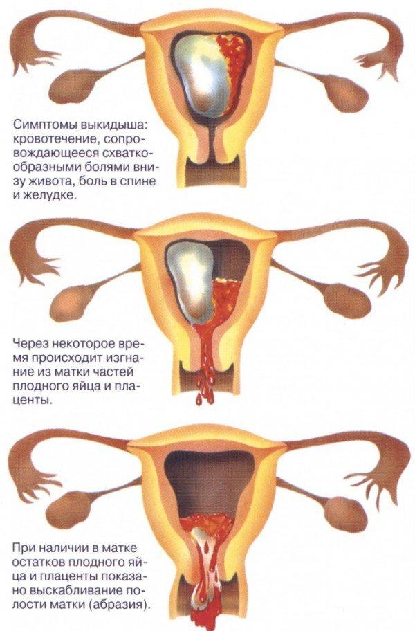 Процесс самопроизвольного аборта