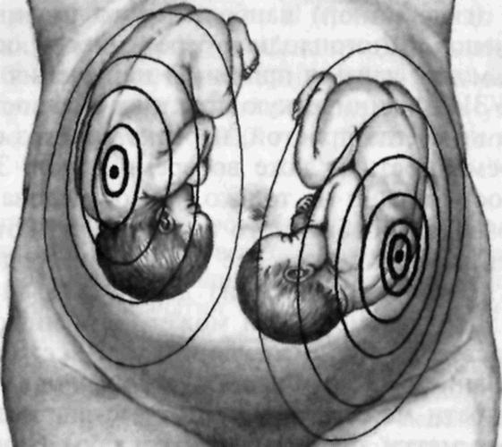 Аускультация при многоплодной беременности