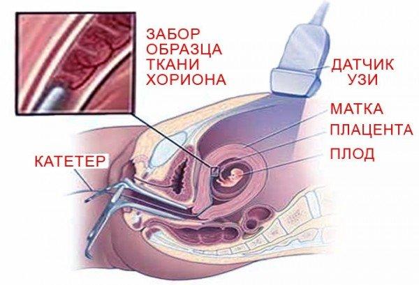 Биопсия хориона с помощью катетера
