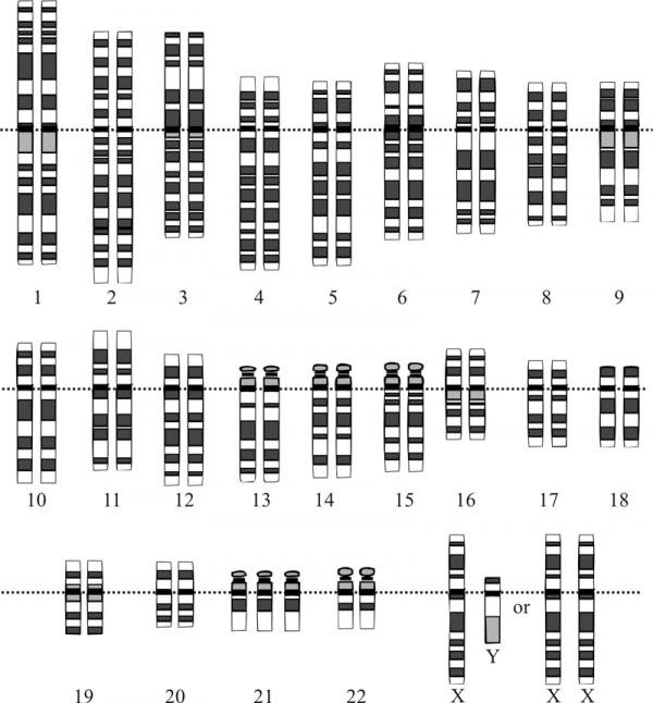 Хромосомный набор человека с синдромом Дауна