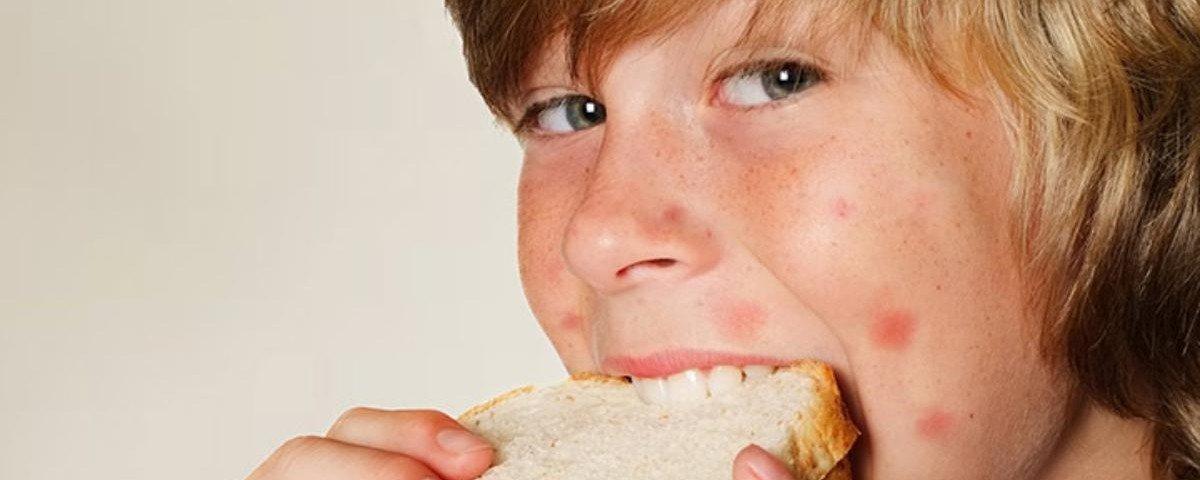 капли от пищевой аллергии