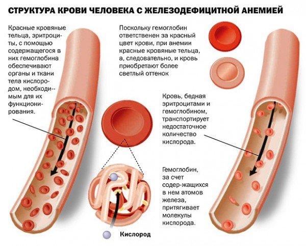Кровь при анемии обладает характерной бледностью