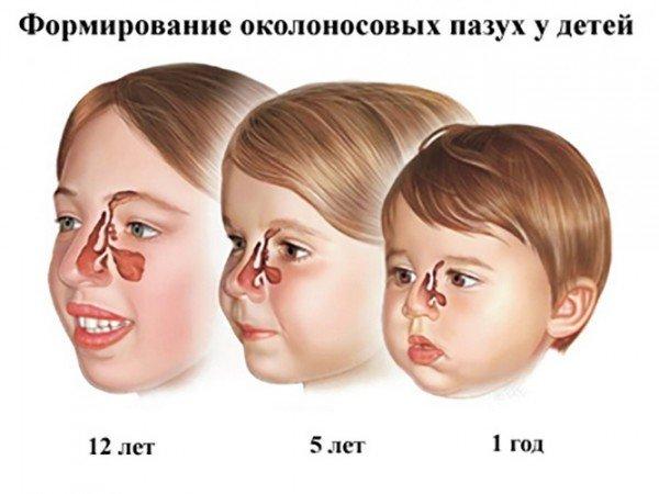 Формирование околоносовых синусов у детей разного возраста