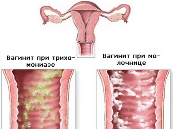 схема вагинита