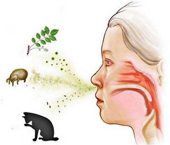 Аллергены, вызывающие кашель