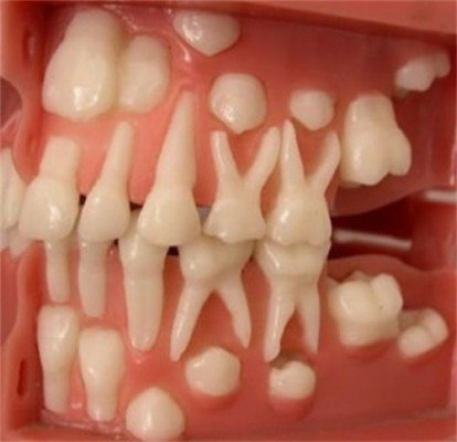 Как выглядит нижний молочный зуб