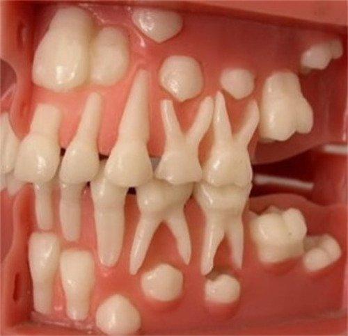 макет расположения молочных зубов и зачатков постоянных зубов