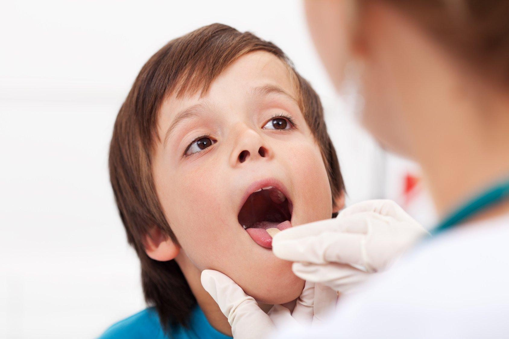 осмотр горла у ребёнка