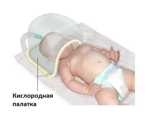 Кислородотерапия