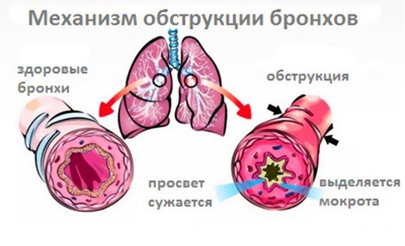 Анатомия схема и строение легких человека