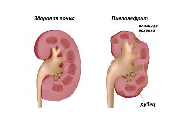 Боль в бедре симптомы лечение