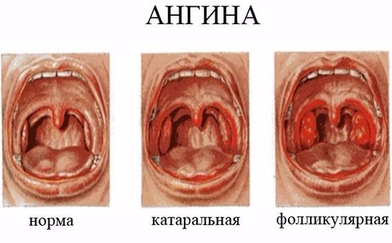 сравнение фолликулярной икатаральной форм ангины