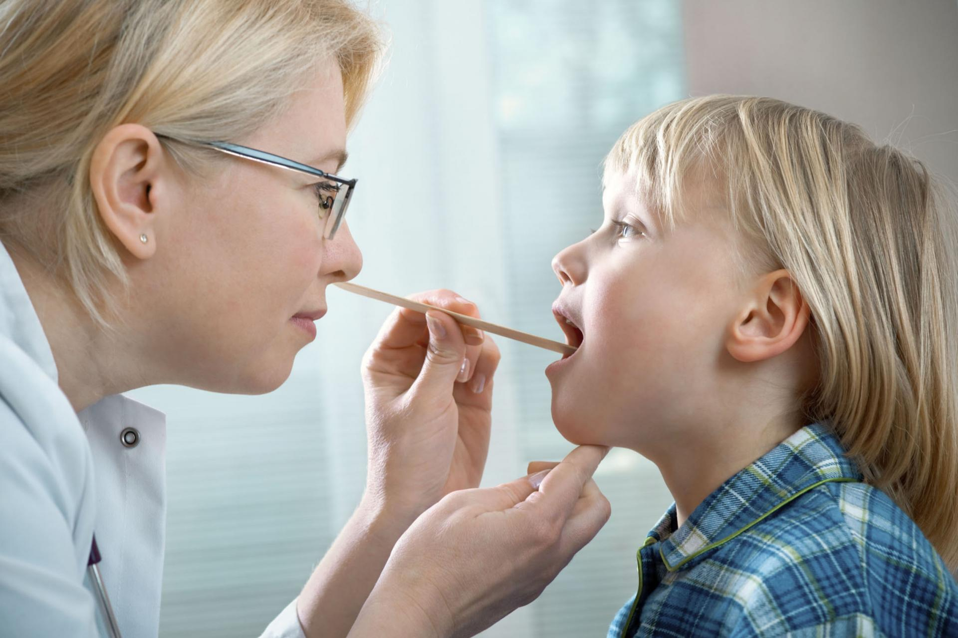 Катаральная ангина у детей: причины появления, симптомы и лечение