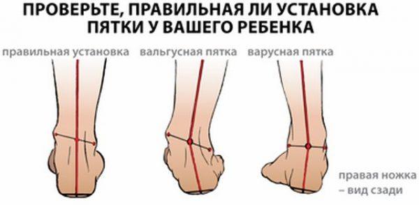 Деформация стопы у детей