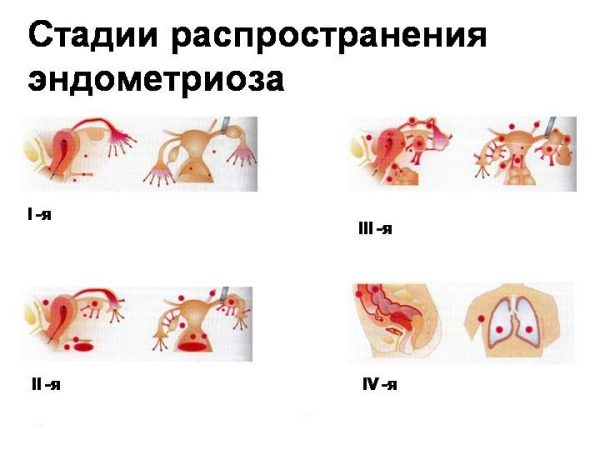 Стадии распространения эндометриоза