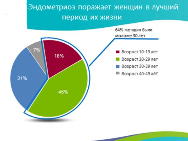 Статистика заболевания эндометриозом женщин разного возраста