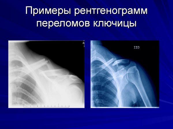 Как выглядит перелом ключицы на рентгенограмме