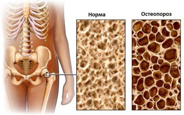 Остеопороз — образцы костной ткани
