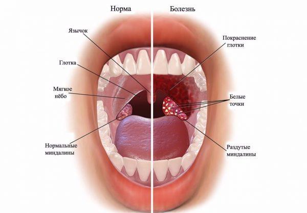 Ангина или бактериальный тонзиллит