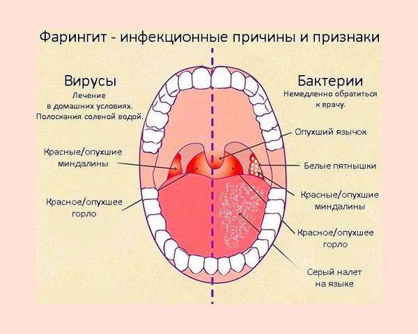 Лечение вирусного и бактериального фарингита у детей
