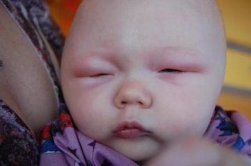 Отёк Квинке у новорождённого