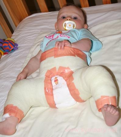 Гипсование вывих тазобедренного сустава анатомия межпястный сустав по форме