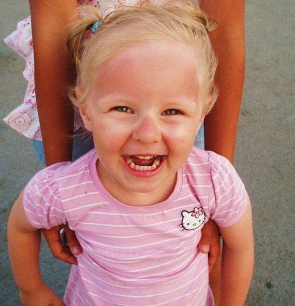 Солнечные ожоги на лице у ребёнка