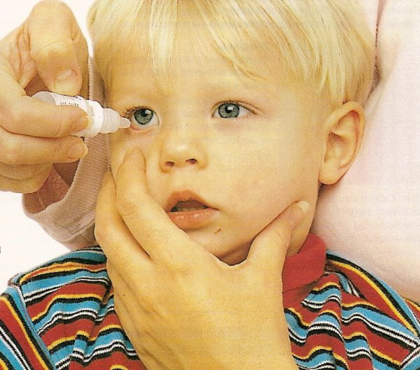 Закапывание глаз ребенку