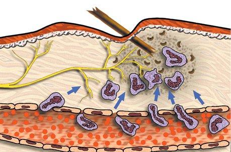 Схема проникновения инородного тела в слои эпидермиса