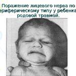 Лицо ребенка при повреждении лицевого нерва