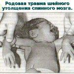 Ребёнок с повреждением шейного отдела спинного мозга
