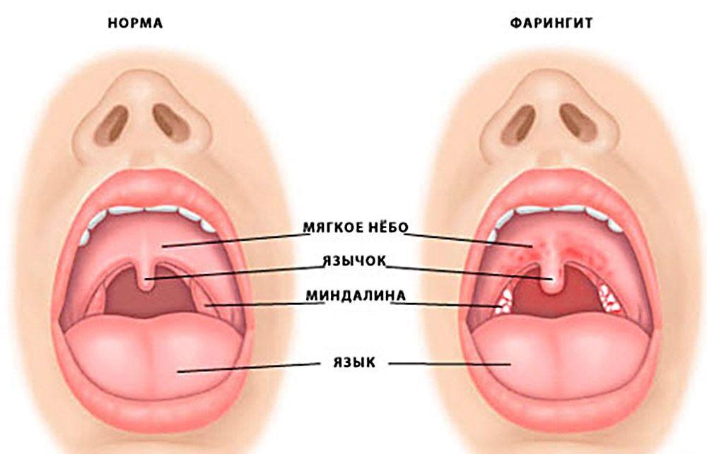 Фото орви в горле у ребенка