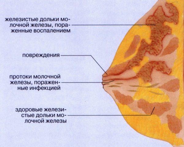 Лактостаз — схема