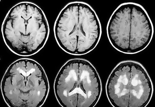 Томографическое изображение головного мозга