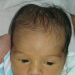 Форма головы при родовой травме
