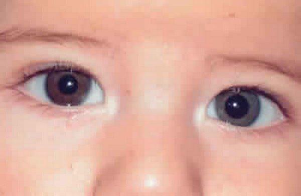 Различный размер зрачков у ребёнка