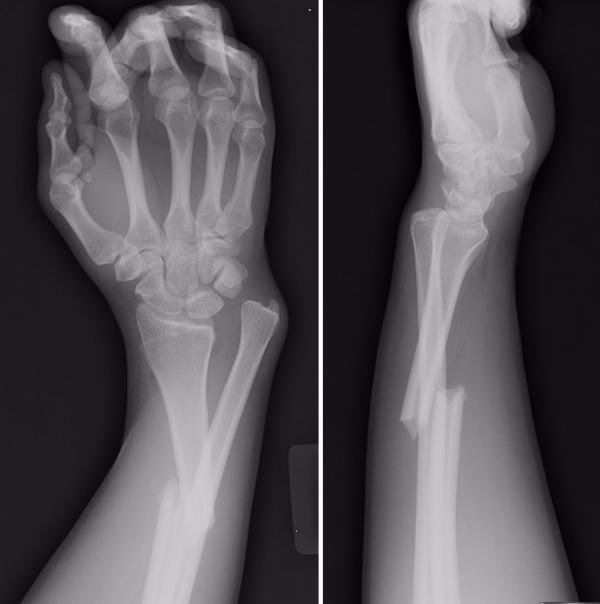 Рентгенография перелома